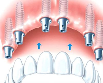 protezirovanie_na_implantah